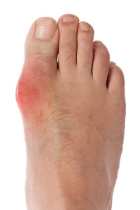 How to Alleviate Symptoms of Gout