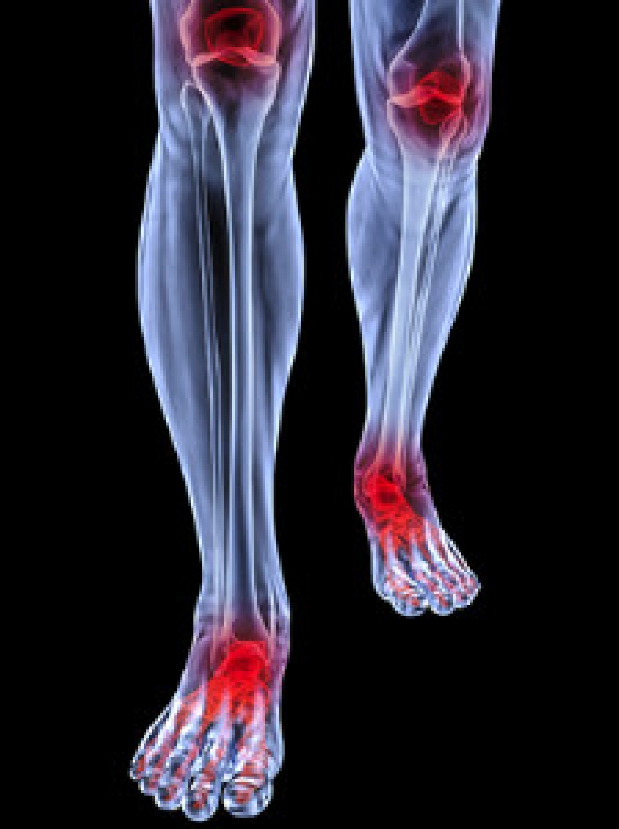 Foot Conditions That May Occur As A Result Of Rheumatoid Arthritis